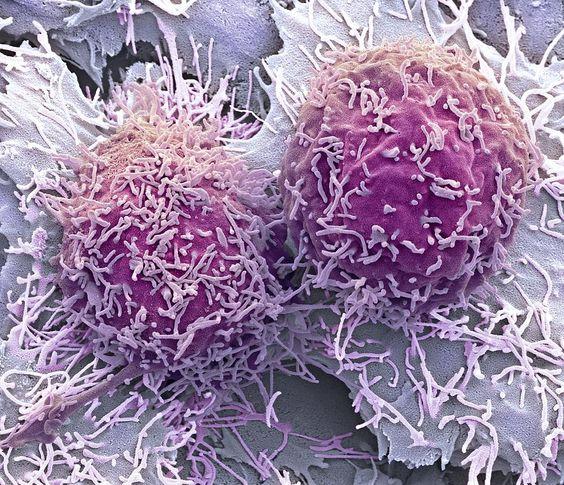 le point faible du cancer _ cellules cancéreuses