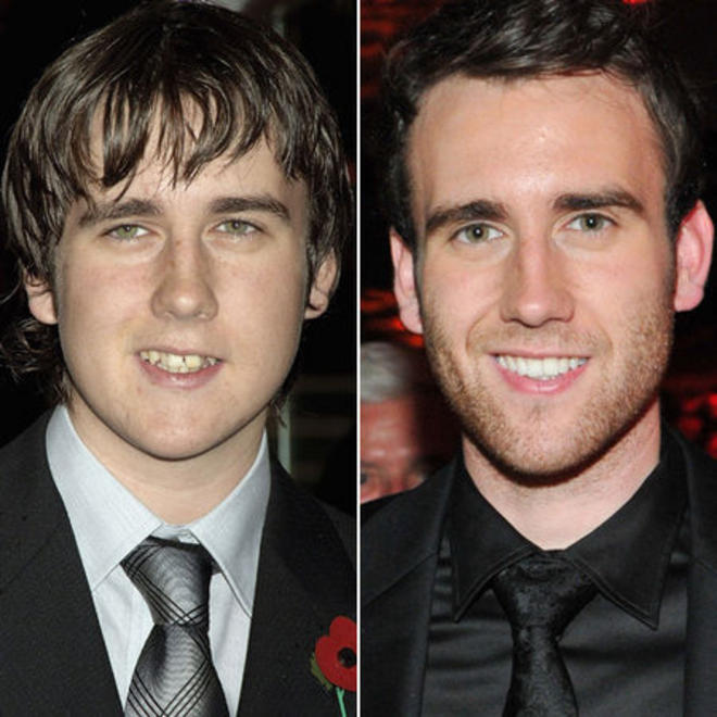 Matthew-Lewis-Harry-Potter